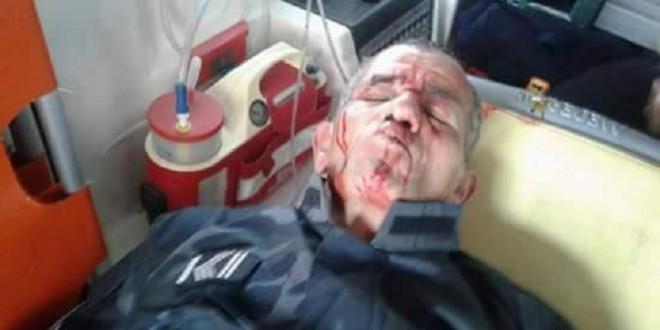 الدربي: إصابة 5 أعوان أمن واثنان منهما في حالة حرجة